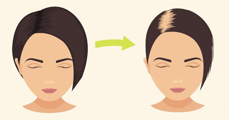 3 astuces pour lutter de manière efficace contre la chute de cheveux