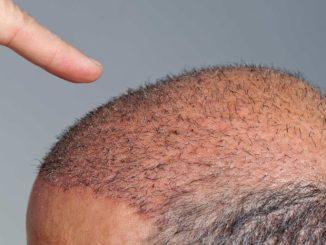 Procédure de greffe de cheveux et 5 règles pour une récupération rapide